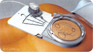 Mise en place du dispositif Cellfina™, après anesthésie locale et aspiration de la zone cellulitique, afin de donner le meilleur angle de pénétration de la micro-lame intégrée.